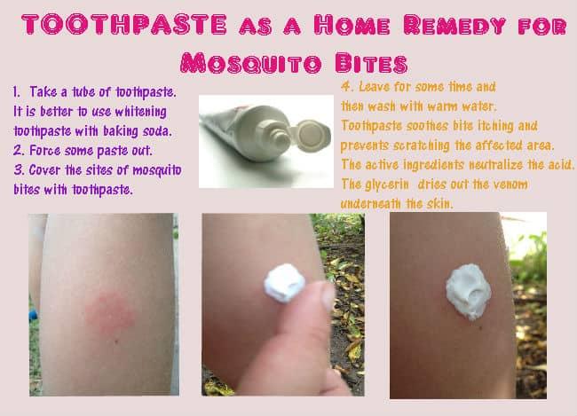 Toothpaste-to-treat-mosquito-bites